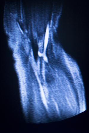 ligaments: MRI magnetic resonance imaging medical scan test elbow results showing ligaments, cartilege and cross section of bones in human skeleton. Stock Photo