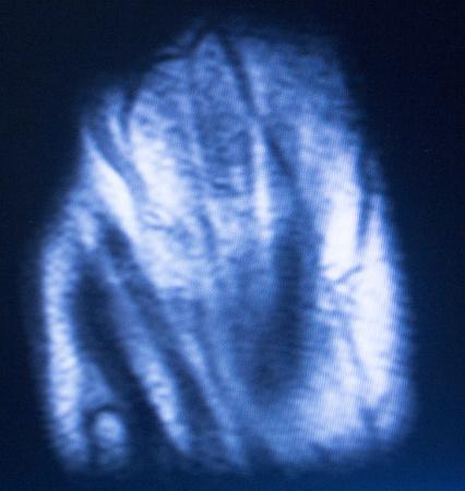 resonancia magnetica: im�genes por resonancia magn�tica MRI resultados de las pruebas de exploraci�n m�dica de la mano y los dedos que muestran ligamentos, cart�lagos y secci�n transversal de huesos en el esqueleto humano.