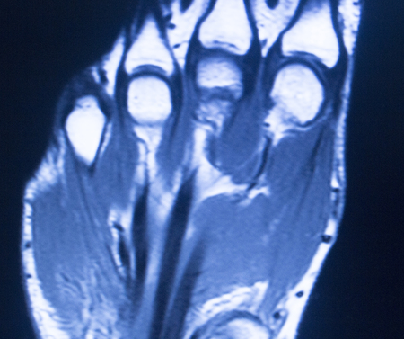 magnetic resonance imaging: MRI magnetic resonance imaging medical scan test results of hand and fingers showing ligaments, cartilege and cross section of bones in human skeleton. Stock Photo
