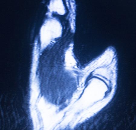 resonancia magnetica: Resultados de las pruebas de resonancia magn�tica por im�genes de resonancia magn�tica de exploraci�n m�dica que muestran ligamentos, cart�lagos y secci�n transversal de los huesos en el esqueleto humano o mano y los dedos.