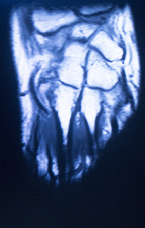 ligaments: MRI magnetic resonance imaging medical scan test results of hand and fingers showing ligaments, cartilege and cross section of bones in human skeleton. Stock Photo