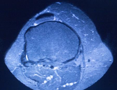 resonancia magnetica: resultados de las pruebas de resonancia magn�tica de resonancia magn�tica de exploraci�n m�dica que muestran ligamentos, cart�lagos y secci�n transversal de huesos en el esqueleto humano.