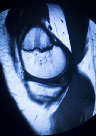 resonancia magnetica: Im�genes por resonancia magn�tica resultados de las pruebas de exploraci�n m�dica de resonancia magn�tica que muestra articulaci�n de la rodilla, menisco, f�mur, muslo y la pantorrilla de la pierna, ligamentos, cart�lagos y la secci�n transversal de los huesos en el esqueleto humano. Foto de archivo