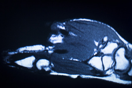 ligaments: MRI magnetic resonance imaging medical scan test results showing ligaments, cartilege and cross section of bones in human skeleton.