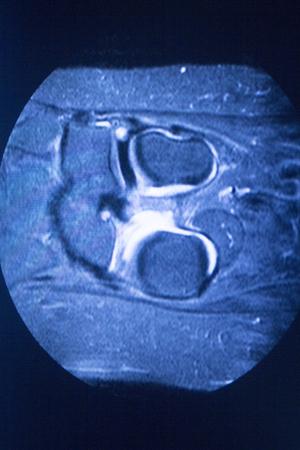 medical imaging: MRI magnetic resonance imaging medical scan test results showing ligaments, cartilege and cross section of bones in human skeleton.