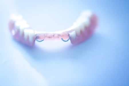 laboratorio dental: Removable partial denture metal and plastic dental false teeth prosthetics.