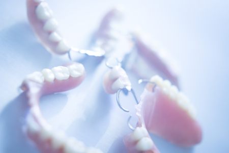 Removable partial denture metal and plastic dental false teeth prosthetics.