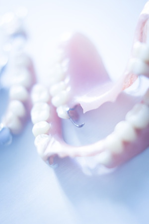 prosthetics: Removable partial denture metal and plastic dental false teeth prosthetics.