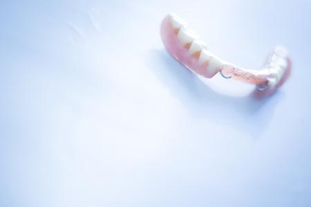 prosthetic equipment: Removable partial denture metal and plastic dental false teeth prosthetics.