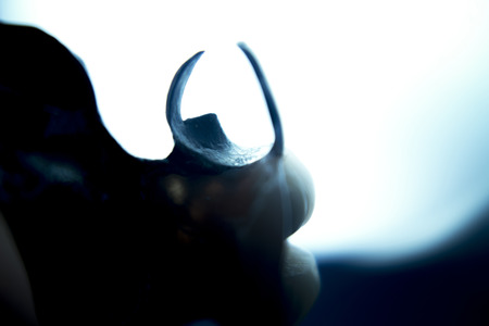 false teeth: Removable partial denture metal and plastic dental false teeth prosthetic photograph. Stock Photo