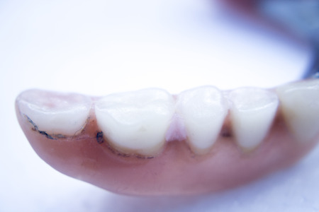 removable: Removable partial denture metal and plastic dental false teeth prosthetic. Stock Photo