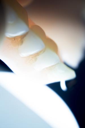 false teeth: Removable partial denture metal and plastic dental false teeth prosthetic. Stock Photo