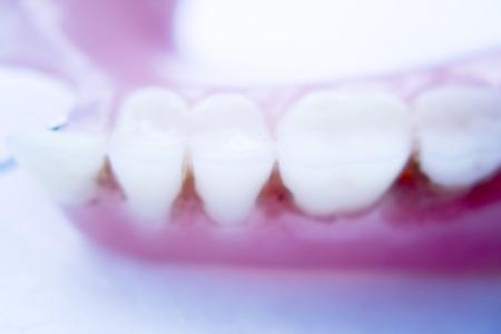 prosthetic: Removable partial denture metal and plastic dental false teeth prosthetic. Stock Photo