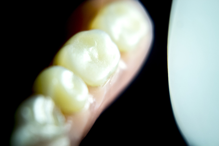 partial: Removable partial denture metal and plastic dental false teeth prosthetic. Stock Photo