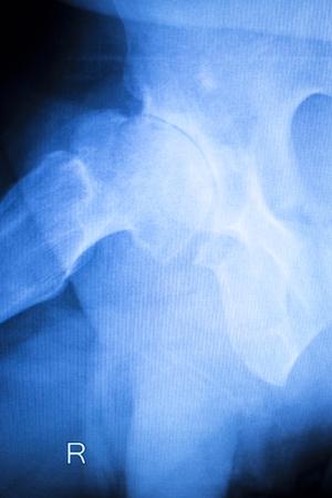 arthritic: Arthritic hip xray test scan orthopedic and Traumatology results. Stock Photo