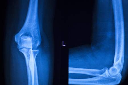 implantology: Othopedics and Traumatology surgical implant arm and elbow xray test scan results showing titanium metal plate and screws. Stock Photo