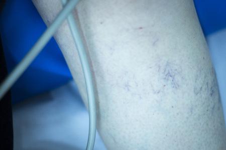 myofascial: Physiotherapy and orthopedics clinic patient in leg rehabilitation from Traumatology photo.