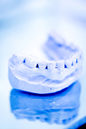 prosthetic equipment: Dental prosthetics clay tooth mold in dentists photo. Stock Photo
