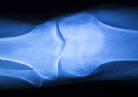 test results: Knee joint meniscus x-ray test scan results photo showing injury and pain for orthopedic surgery and Traumatology surgical treatment. Stock Photo