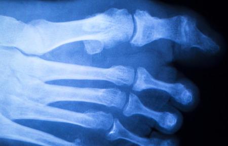 ortopedia: Lesión en el pie y los dedos del pie de rayos x ortopedia escaneo y Traumatología resultados de las pruebas de radiología foto.