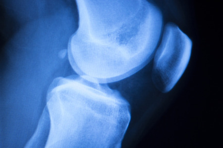 Knee joint meniscus x-ray test scan results photo showing injury and pain for orthopedic surgery and Traumatology surgical treatment. Banco de Imagens