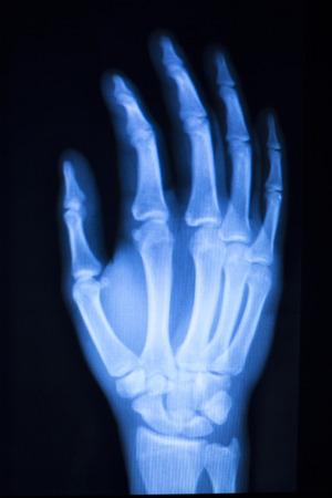 La mano, los dedos y los resultados de las pruebas de exploración del hospital pulgar de rayos X para el dolor articular y lesiones en la medicina ortopédica y traumatología clínica.