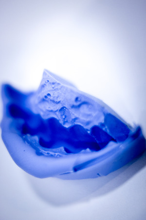 plaster mould: Dental prosthetics clay tooth mold in dentists photo. Stock Photo