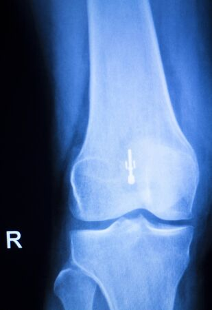 titanium: Knee joint meniscus x-ray test scan results photo showing injury and pain and orthopedic surgery and Traumatology surgical titanium metal implant