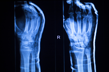 thumb x ray: Hand, fingers and thumb hospital x-ray scan test results for joint pain and injury in orthopedic medicine and traumatology clinic.