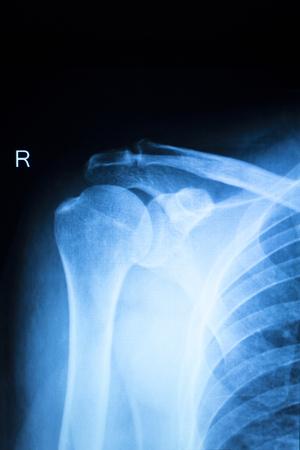 orthopedics: Shoulder injury orthopedics xray scan Trauamtology scanning results. Stock Photo