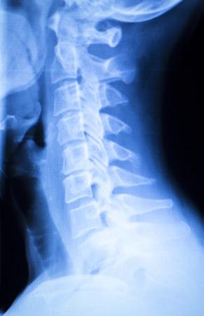 ortopedia: Cuello doloroso y lesión de la columna de rayos x Traumatología y ortopedia prueba los resultados del análisis. Foto de archivo