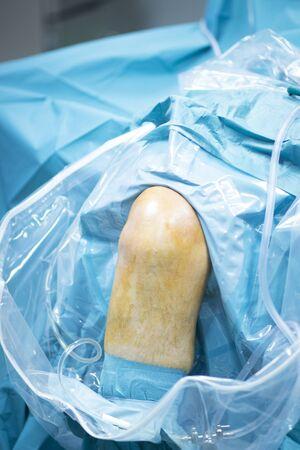traumatology: Hospital orthopedic traumatology leg surgery operating room photo. Stock Photo