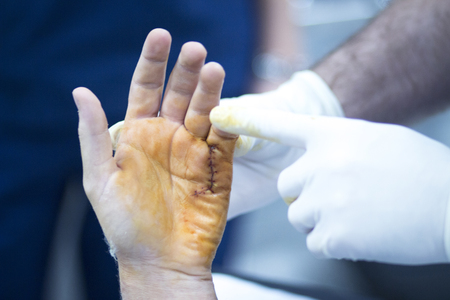 orthopaedics: Hospital hand surgery orthopedics operation photo.