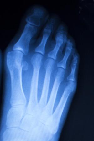 orthopaedics: Lesi�n en el pie y los dedos del pie de rayos x ortopedia escaneo y Traumatolog�a resultados de las pruebas de radiolog�a foto.