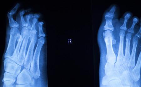 traumatology: Foot and toes injury x-ray scan orthopedics and Traumatology radiology test results photo.