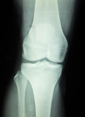 meniscus: Knee joint meniscus x-ray test scan results photo showing injury and pain for orthopedic surgery and Traumatology surgical treatment. Stock Photo