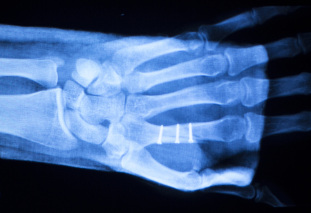 thumb x ray: Hand, fingers and thumb hospital x-ray scan test results for joint pain and injury with orthopedic plate and screws titanium implant.