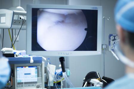 body image: Hospital keyhole micro surgery arthroscopy operation screen showing arthroscope camera internal body image photo. Stock Photo