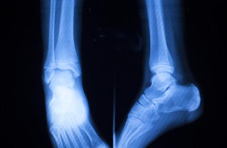 shin bone: Foot ankle and shin orthopedics x-ray scan results.