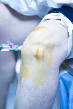 anaesthetic: Knee surgery anaesthetic injection during operation in hospital emergency operating room photo.