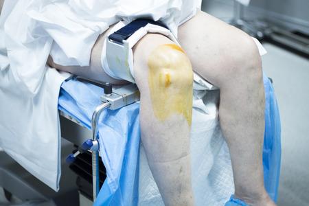 sterilization: Knee arthroscopy orthopedic surgery operation in hospital emergency operating room sterilization of leg photo.