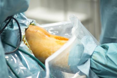 meniscus: Orthopedic surgery meniscus operation hospital emergency operating room photo. Stock Photo