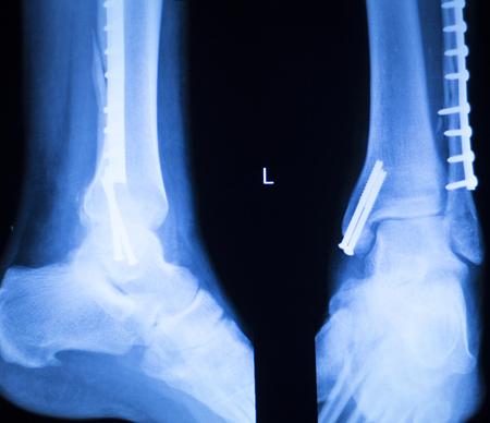 ortopedia: Resultados de escaneo de rayos X del tobillo del pie y ortopedia en las piernas que muestran la placa de Traumatología y tornillo implantes de titanio.