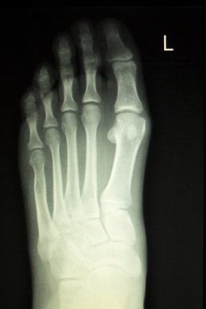 toes: Foot and toes injury x-ray scan orthopedics and Traumatology radiology test results photo.
