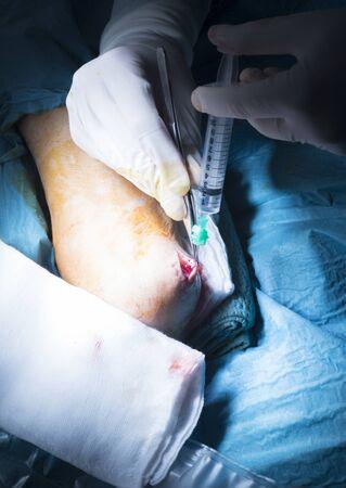 traumatology: Hospital elbow and arm orthopedics surgery Traumatology operation stitching photo.