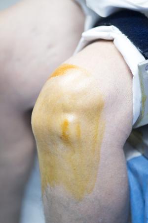 traumatology: Hospital orthopedics Traumatology surgical operation on torn meniscus in knee emergency operating room photo.