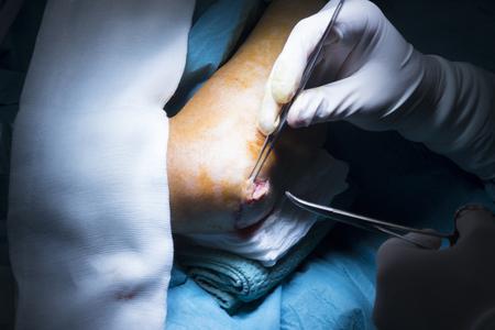 orthopaedics: Codo Hospital de Traumatolog�a y ortopedia brazo cirug�a costura operaci�n foto.