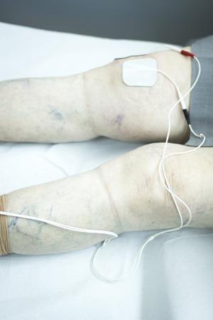 traumatology: Physiotherapy and orthopedics clinic patient in leg rehabilitation from Traumatology photo.