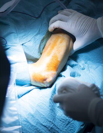 traumatology: Hospital elbow and arm orthopedics surgery Traumatology operation photo. Stock Photo