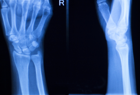 titanium: Othopedics and Traumatology surgical implant arm and elbow xray test scan results showing titanium metal plate and screws. Stock Photo